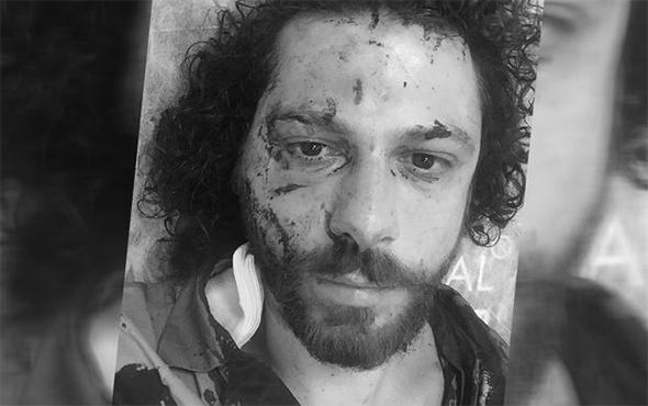 Ünlü oyuncu kabusu yaşamıştı: İşte o saldırının görüntüleri!