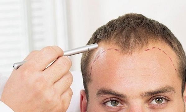 Saç ekim işlemi kimlere yapılır?