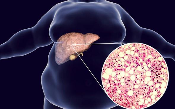 Karaciğer yağlanması çağın hastalığı olabilir