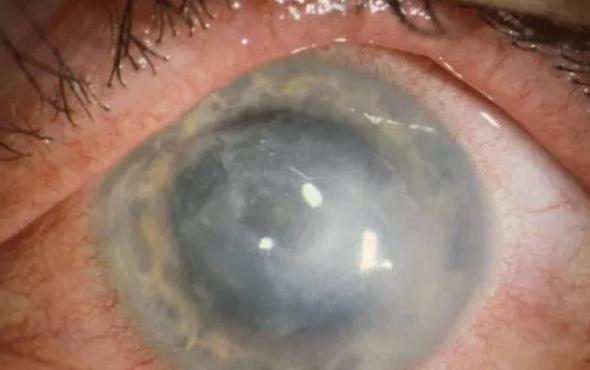 Lens kullananlara 'körlüğe yol açan enfeksiyon' uyarısı!