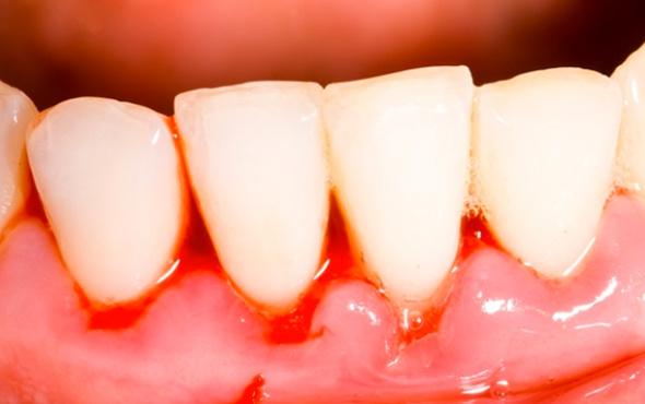 Diş eti problemleri nelerdir Lamina tedavisi nedir?