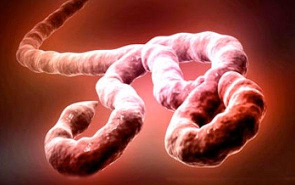 Ebola can almaya devam ediyor sayı 405'e yükseldi