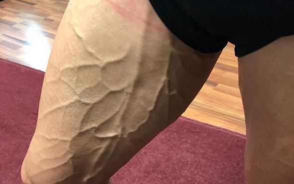 Bursasporlu Latovlevici'nin bacağının hali olay oldu