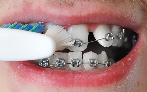 Diş teli olanlar dişlerine nasıl bakım yapmalıdır?