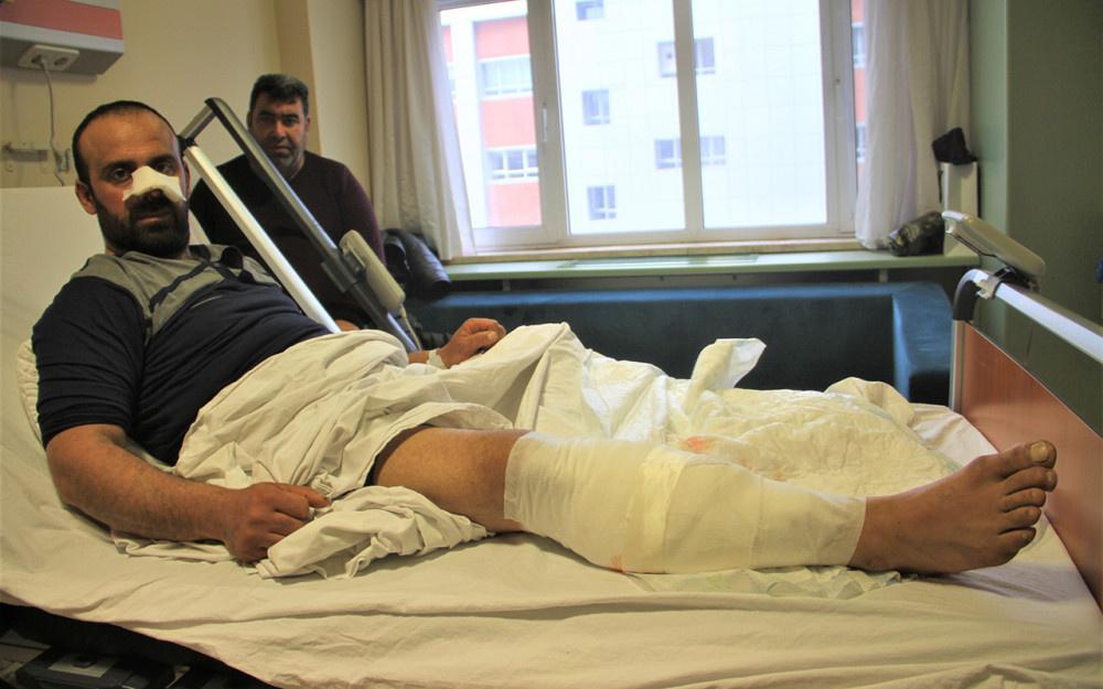 Korkunç olay: Burnunu ve bacağını parçaladılar! - Sayfa 1