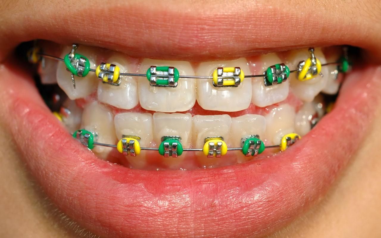 Diş teli takılırken acır mı? İşte merak edilen sorunun cevabı