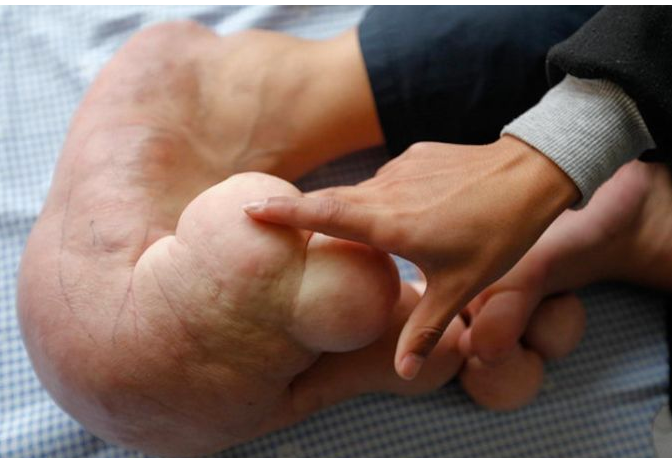 У 14-летнего подростка китайца Сяо Мэн, выросли настолько большие ноги, что
