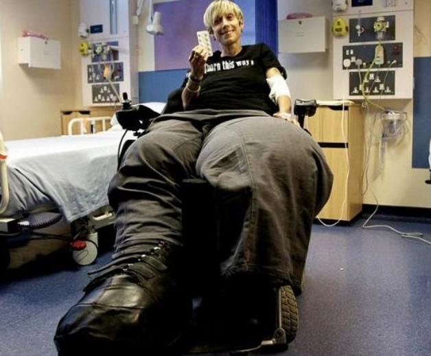 Bu kadının tek bacağı 107 kilo