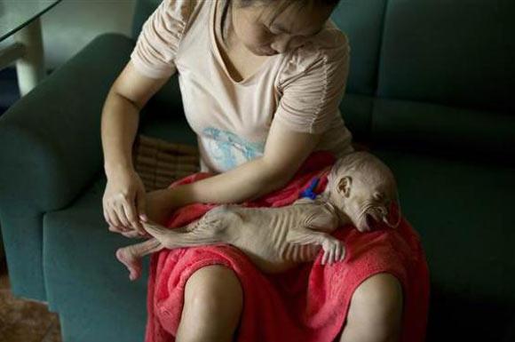 Çin'deki bebeğin dramı