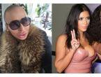 Kim Kardashian'a benzemek için bu hale geldi!