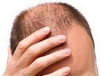 Saç dökülmesinin 20 sebebi