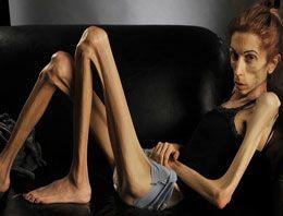 20 kiloya düşen kadın yardım bekliyor