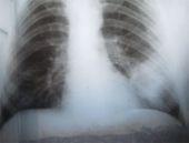 Akciğer kanseri belirtileri en çok kimlerde görülür?