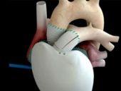 Sağlıkta büyük ilerleme! Yapay kalp üretildi