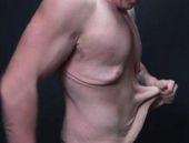 90 kilo verdi ama derisi görenleri şok etti!