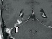 Kurtçuk beyninde tünel açtı farkına