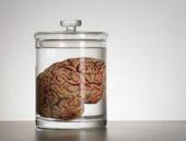 100 insan beyni kayıp
