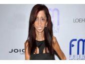 Dünyanın en çirkin kadını seçilince...
