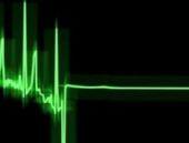 Geneleve giden adam kalp krizi geçirdi