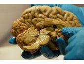 Einstein'ın dilimlenmiş beynine büyük ilgi!