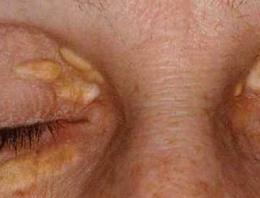 Göz kapağı üzerindeki kabarık sarı lekeler genelde kolesterolden oluşuyor ve beraberinde kanseri getiriyor