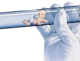 Başkasının bebeğine hamile kaldı tüp bebek şoku
