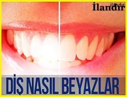 Diş nasıl beyazlar?