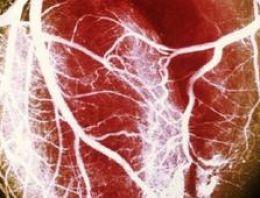 Dijital kalp bankası haberi