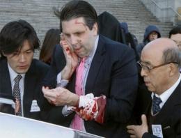 ABD Büyükelçi'sine usturalı saldırı