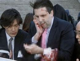 Büyükelçiyi haşat ettiler kanlar içinde
