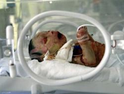 Yılan bebek yaşayacak mı?