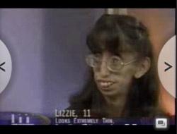 İşte dünyanın en çirkin kadını