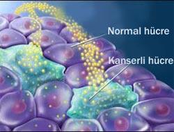 Kanserli hücreyi yok eden şey