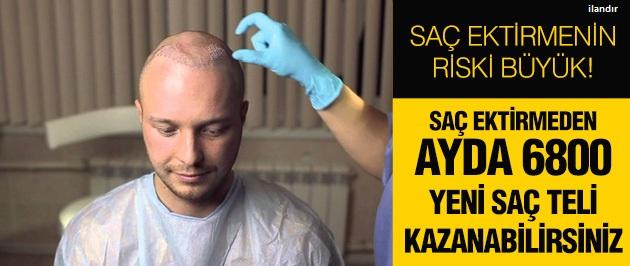 Saç ektirme riskine girmeyin!