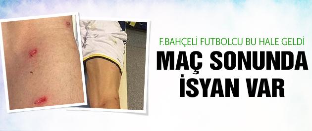 Fenerbahçeli futbolcu bu hale geldi