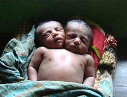 İki kafalı bebek şaşkınlığı