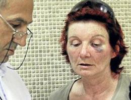 Kadına şiddetin bedeli günlük 20 lira