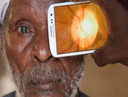 Cep telefonuyla katarakt teşhisi