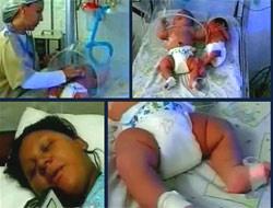 Doktorları şaşkına çeviren bebek