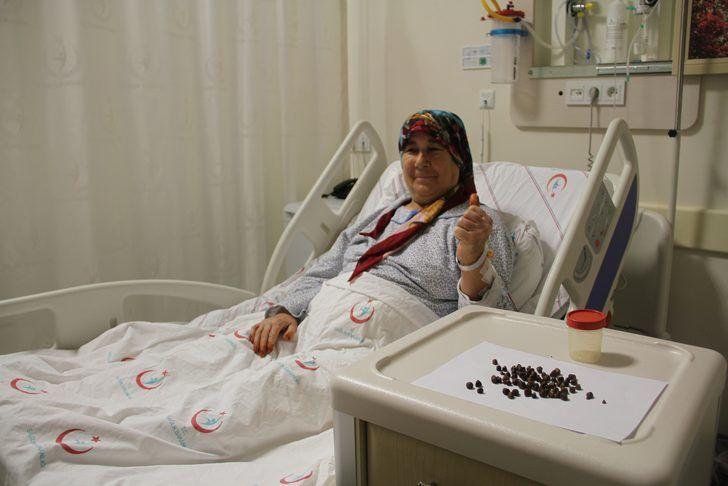 Antalya'da akılalmaz olay Ameliyatla çıkardılar tam 86 tane - Sayfa 2