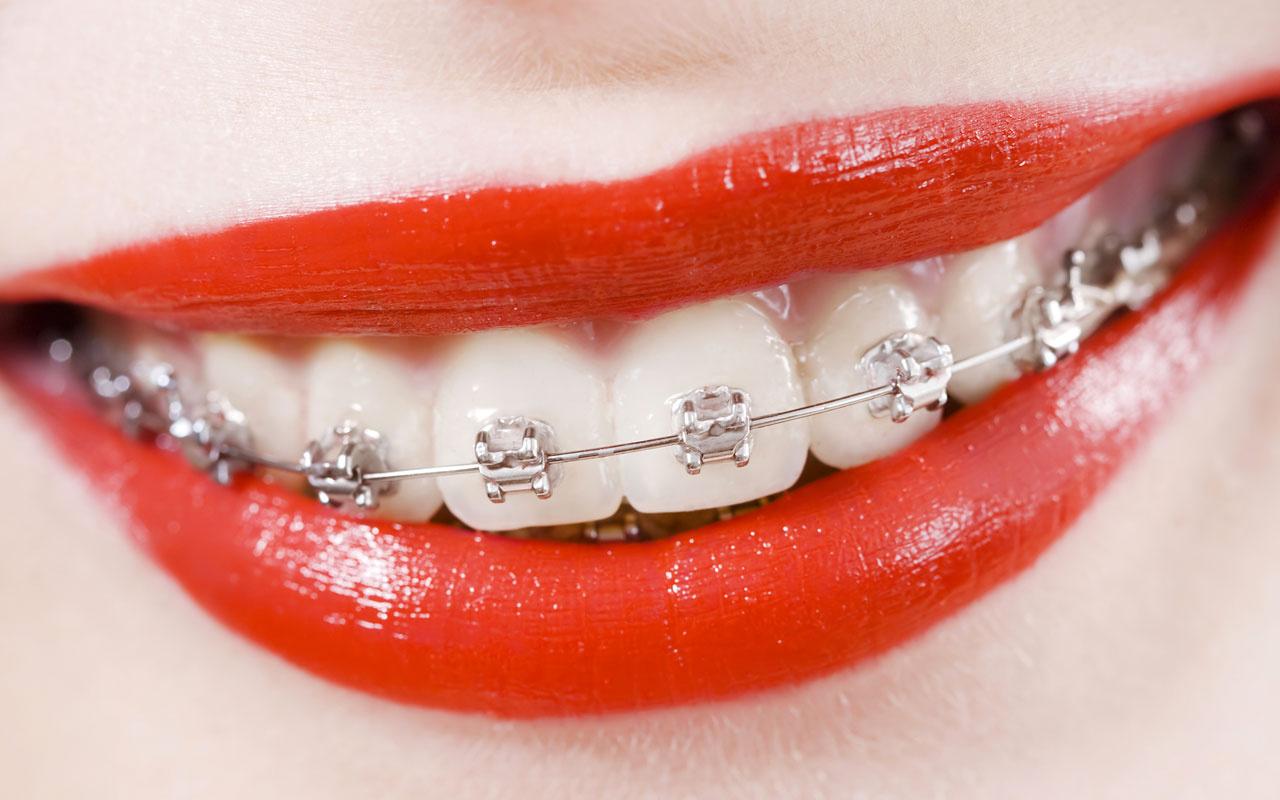 Diş teli kimlere takılır yaş sınırı var mıdır?