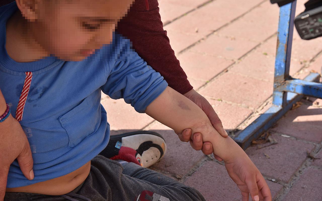 Antalya'da 5 yaşındaki zihinsel engelli çocuğa okulda şiddet iddiası