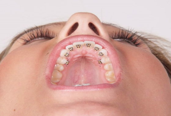 Diş telinden haz etmeyenlere müjde! Bu iki yöntemi deneyin