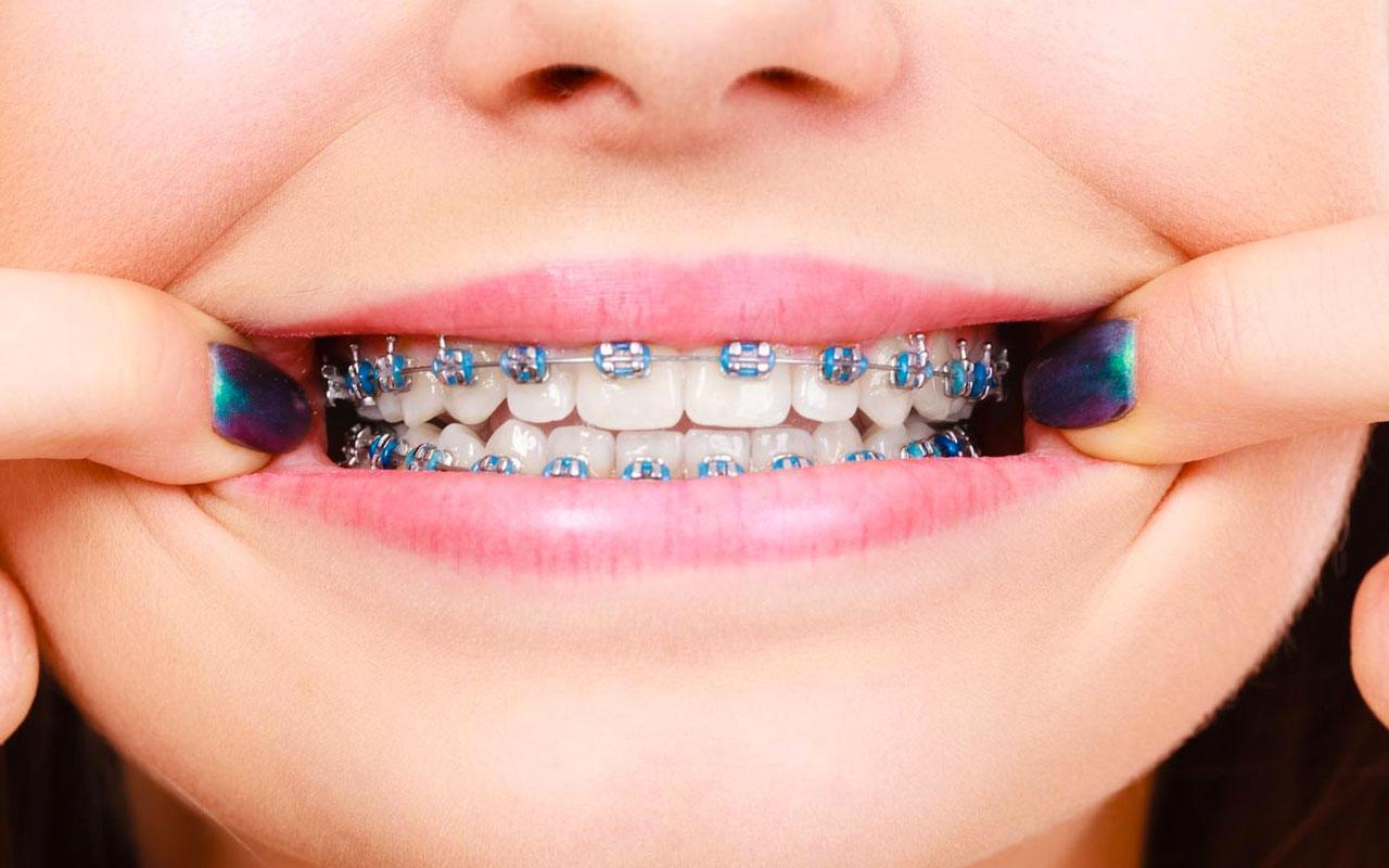 Diş teli kullanırken bu yiyecek ve içeceklerden uzak durun