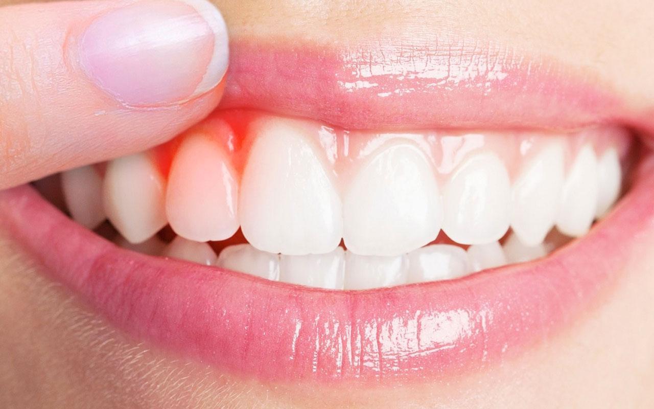 Diş etindeki iltihaplanmaların nedenleri