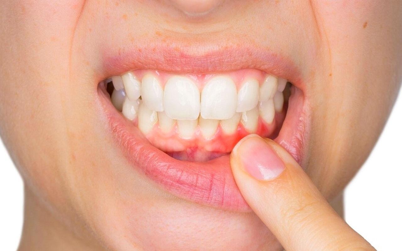 Dişlerin gelişimi için hangi besinler tüketilmelidir?