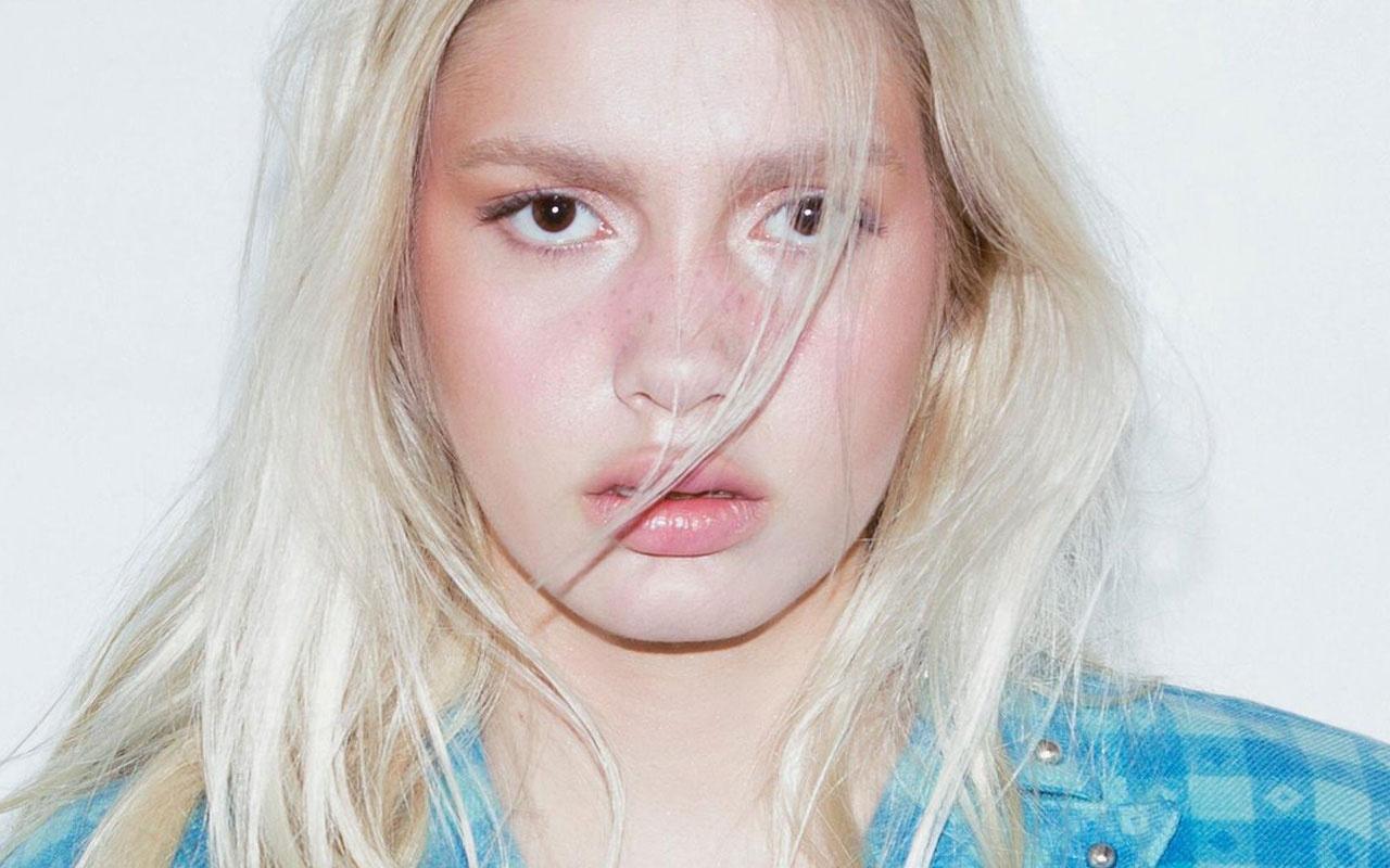 """Aleyna Tilki'den eleştirilere cevap: """"Estetik değil ergenlik şişliği"""""""