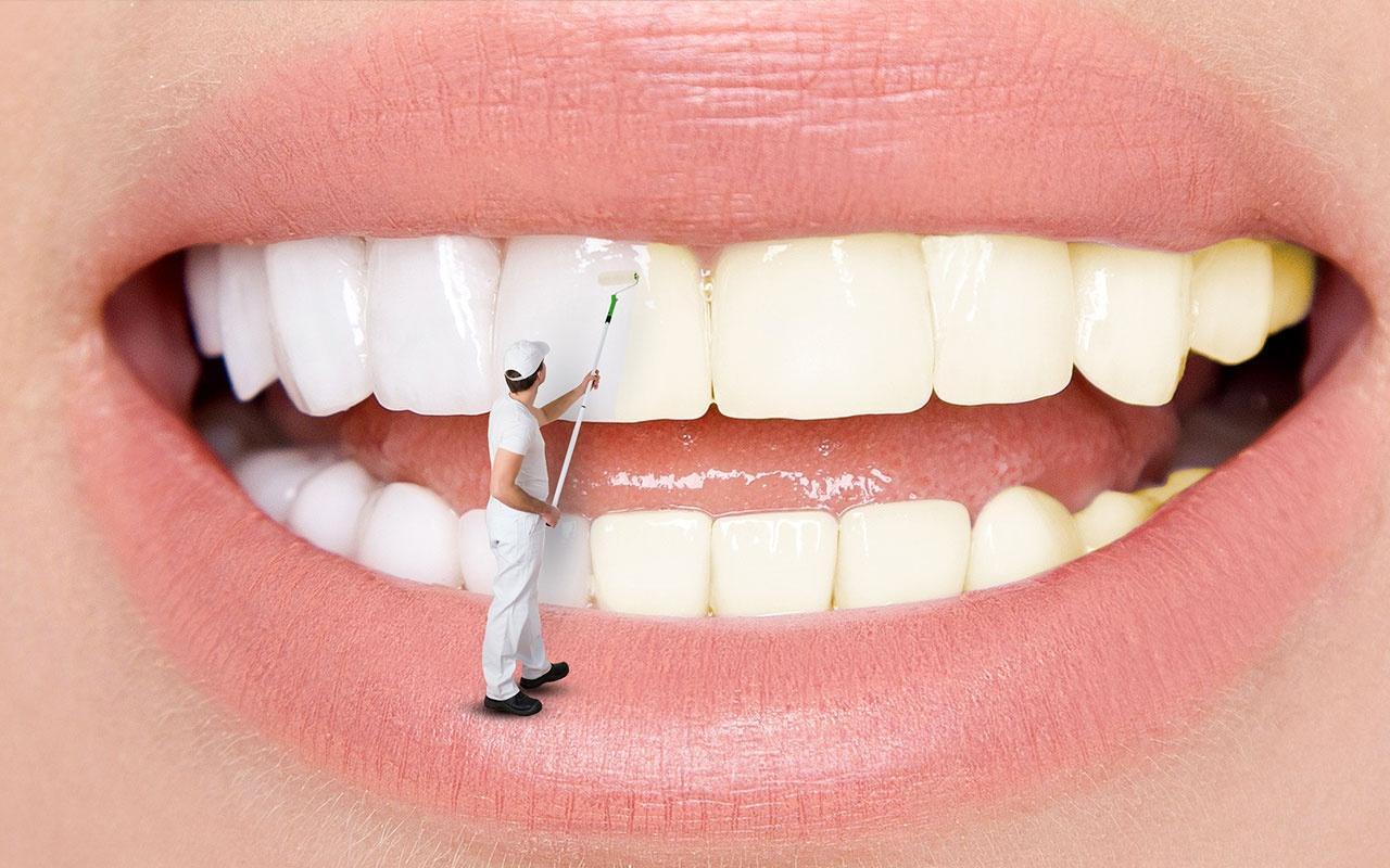 Diş beyazlatmak kanser yapar mı? Uzmanlar net konuştu