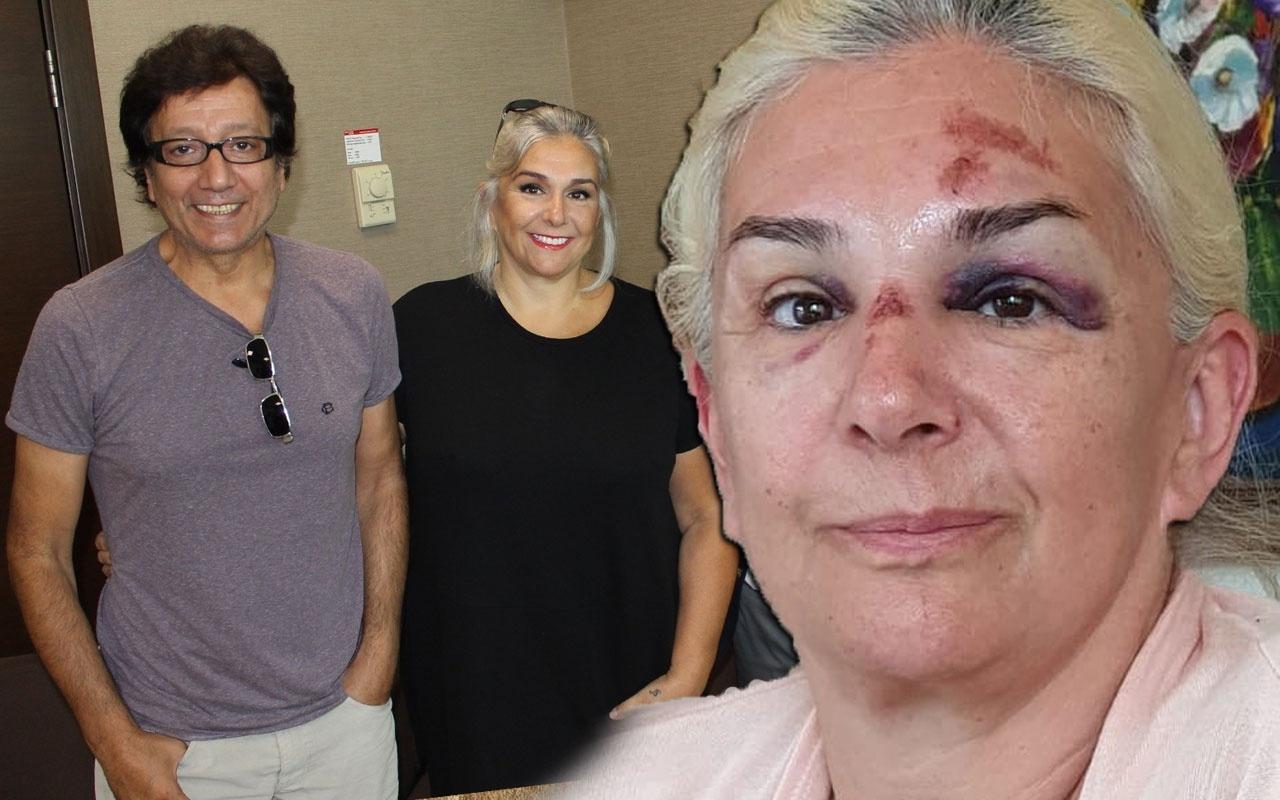 Burçin Orhon tanınmaz hale geldi Süheyl Uygur'un eşinin son görüntüsü korkunç