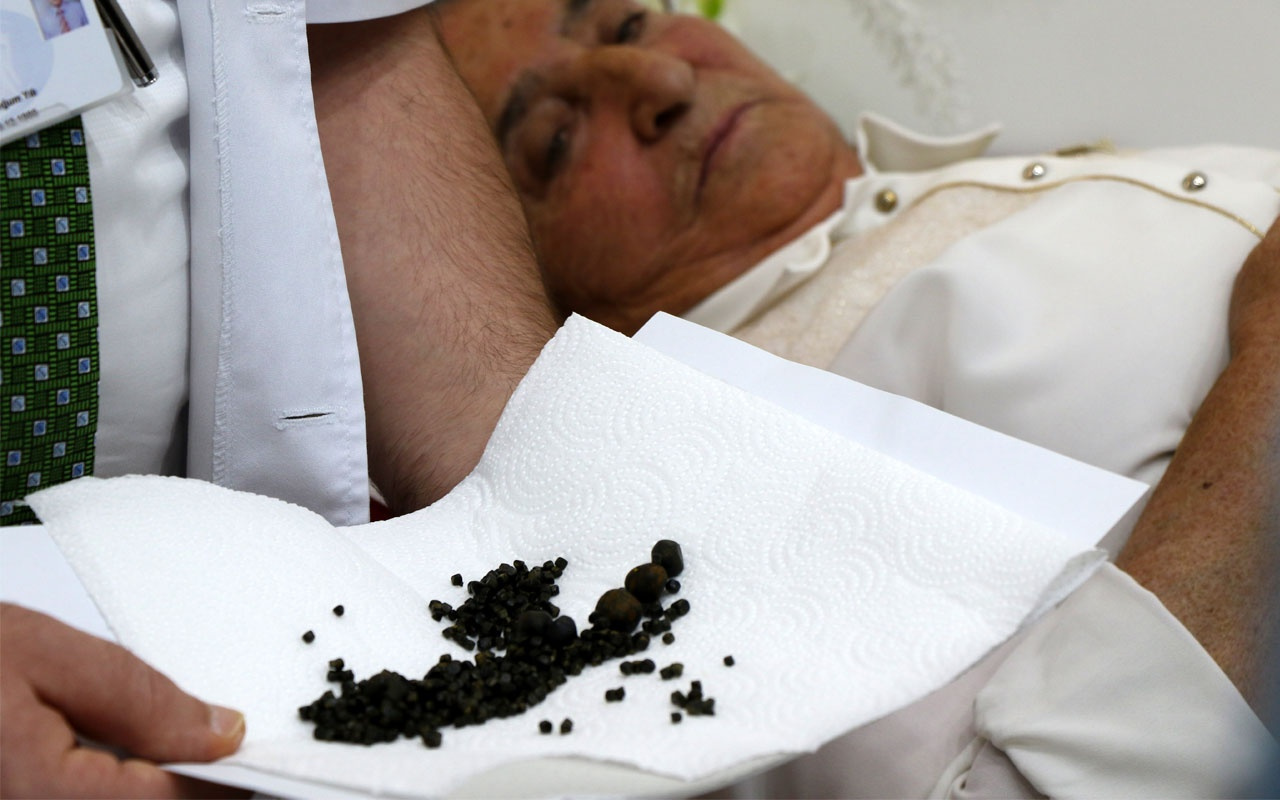 Yaşlı kadının safra kesesinden 450 tane taş çıktı